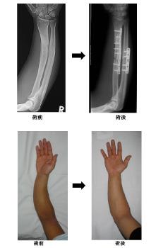上肢骨折変形治癒(前腕骨折変形治癒や内反肘変形など)