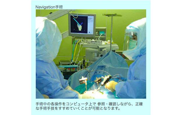 治療技術(Navigation手術)