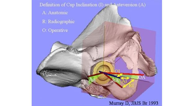 人工股関節のCupの角度表現について
