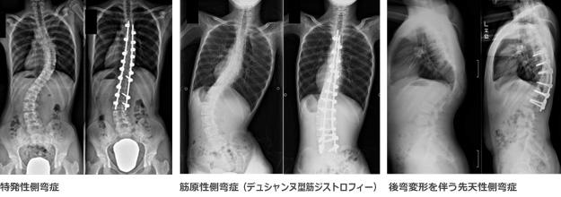 脊柱変形(側弯症・後弯症)