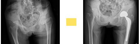大腿骨頚部骨折に対し、人工骨頭置換術