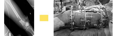 大腿骨開放骨折に対し、イリザロフ創外固定術