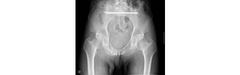 骨盤骨折に対し、整復固定術(ナビゲーション併用)